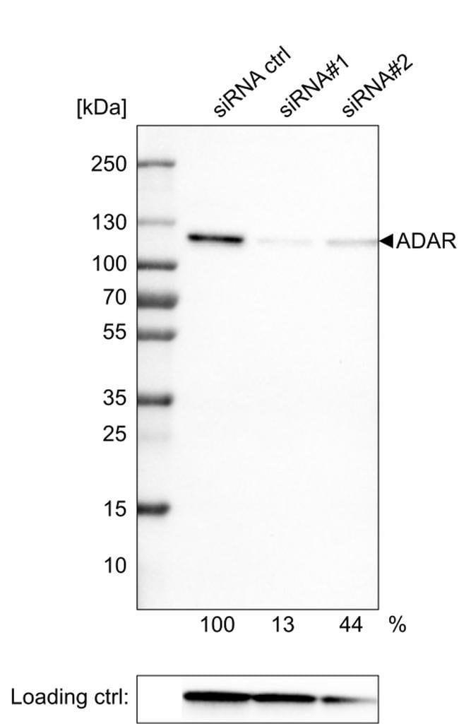 Adenosine Deaminase Mouse anti-Human, Clone: CL0176, Invitrogen 100 µL;