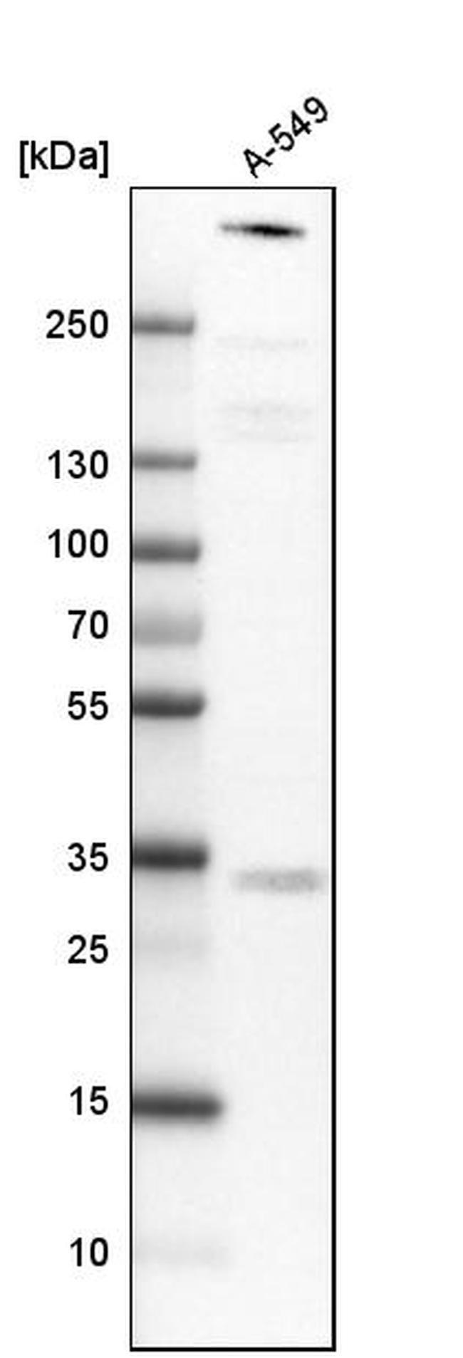 ATRX Mouse anti-Human, Clone: CL0537, Invitrogen 100 µL; Unconjugated