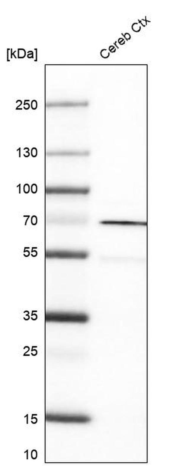 RHOT1 Mouse anti-Human, Clone: CL1083, Invitrogen 100 µL; Unconjugated
