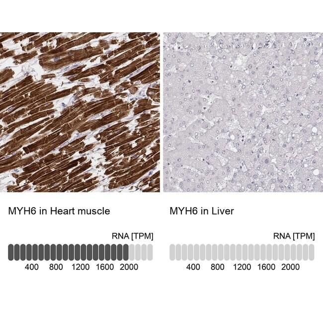 MYH6 Mouse anti-Human, Clone: CL2155, Invitrogen 100 µL; Unconjugated