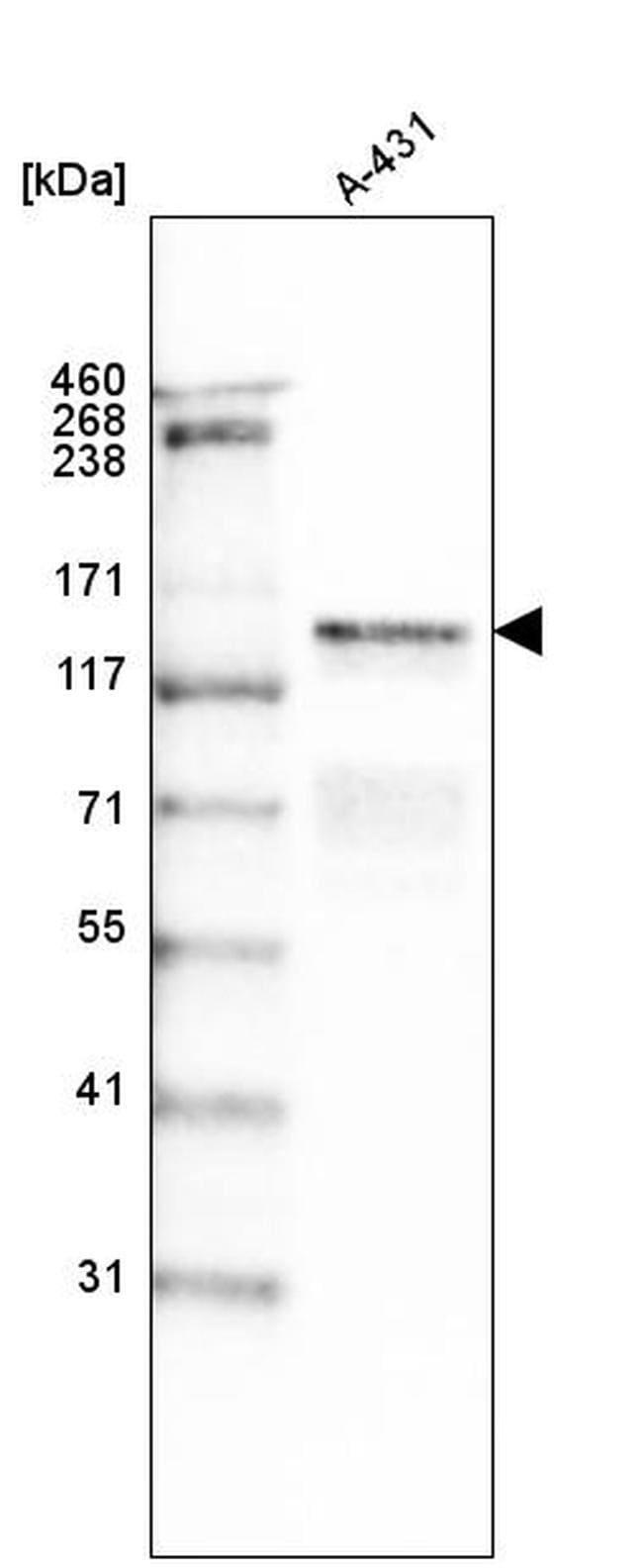 Laminin gamma-2 Mouse anti-Human, Clone: CL2980, Invitrogen 100 µL;