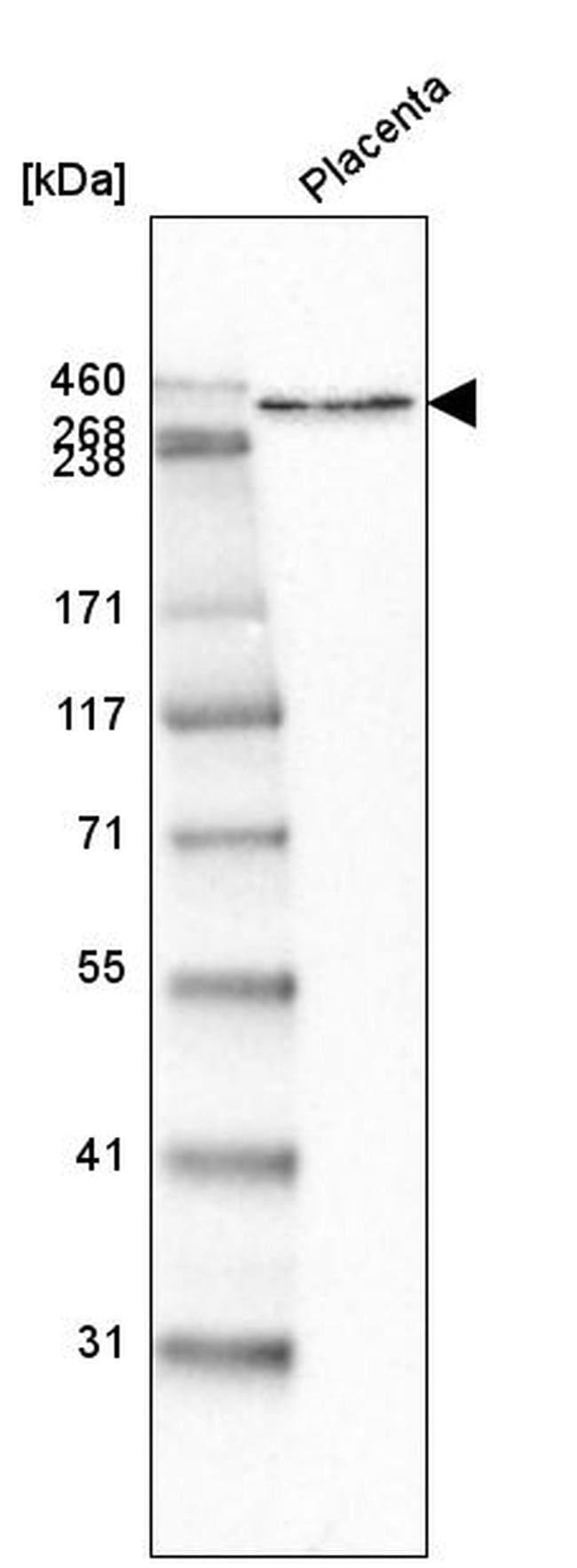 Laminin alpha-5 Mouse anti-Human, Clone: CL3118, Invitrogen 100 µL;