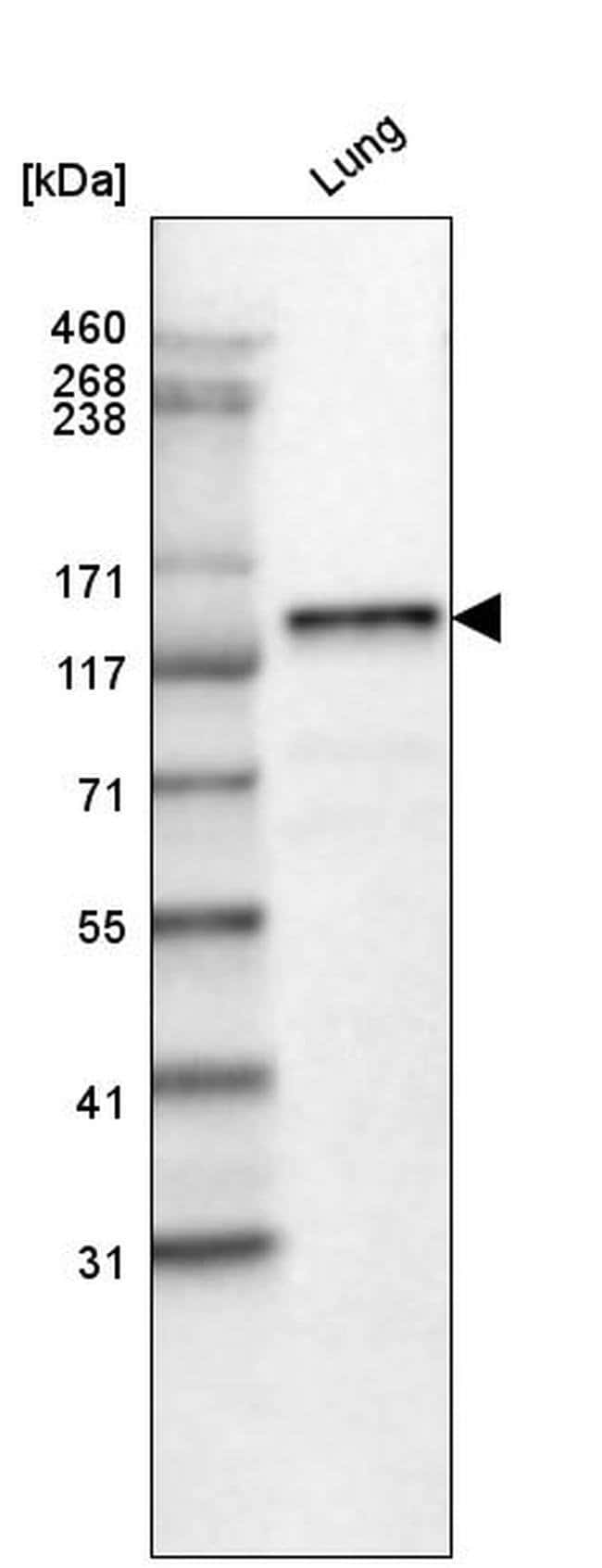 Laminin beta-3 Mouse anti-Human, Rat, Clone: CL3353, Invitrogen 100 µL;