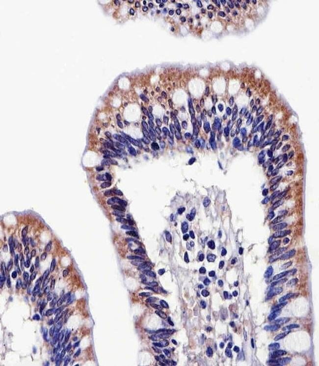 ALDH6A1 Mouse anti-Human, Clone: 147CT8.3.4, Invitrogen 400 µL; Unconjugated