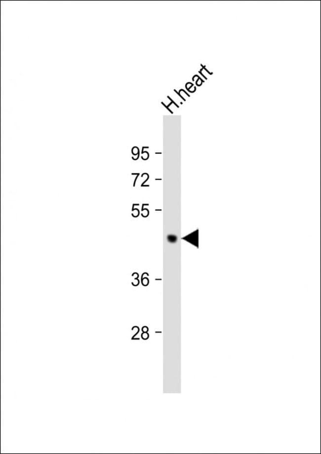 PDK2 Mouse anti-Human, Mouse, Clone: 180CT10.2.3, Invitrogen 400 µL;