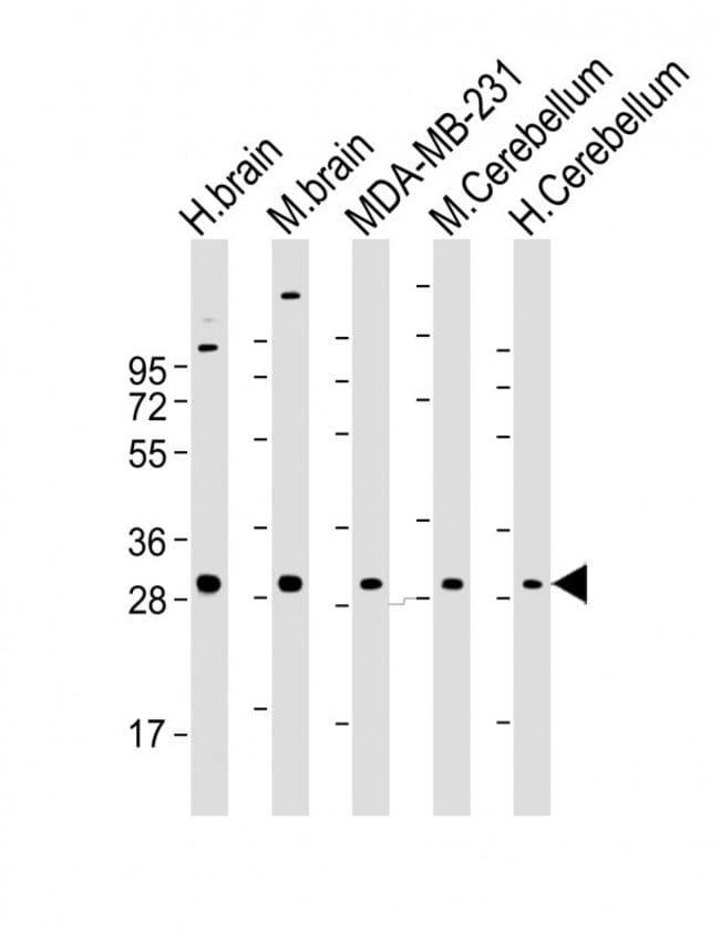 RAB23 Mouse anti-Human, Mouse, Clone: 427CT2.1.1, Invitrogen 100 µL;