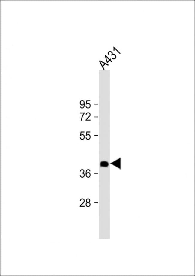 NMI Mouse anti-Human, Clone: 1580CT730.43.59, Invitrogen 200 µL; Unconjugated