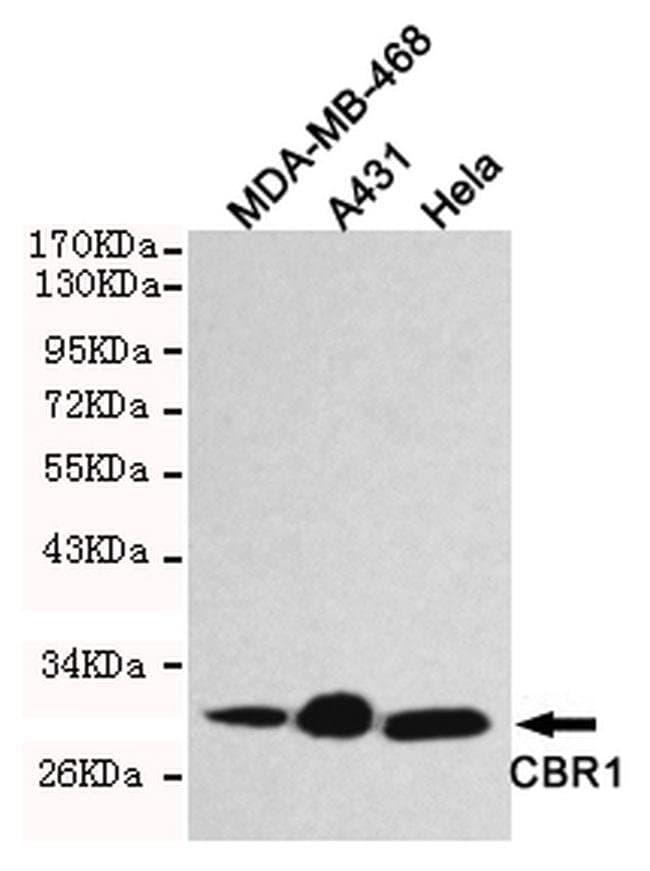 CBR1 Mouse anti-Human, Clone:, Invitrogen 100 µL; Unconjugated