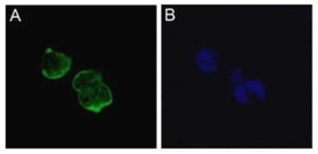 SCN5A Mouse anti-Human, Clone: ERIC-1, Invitrogen 100 µg; Unconjugated