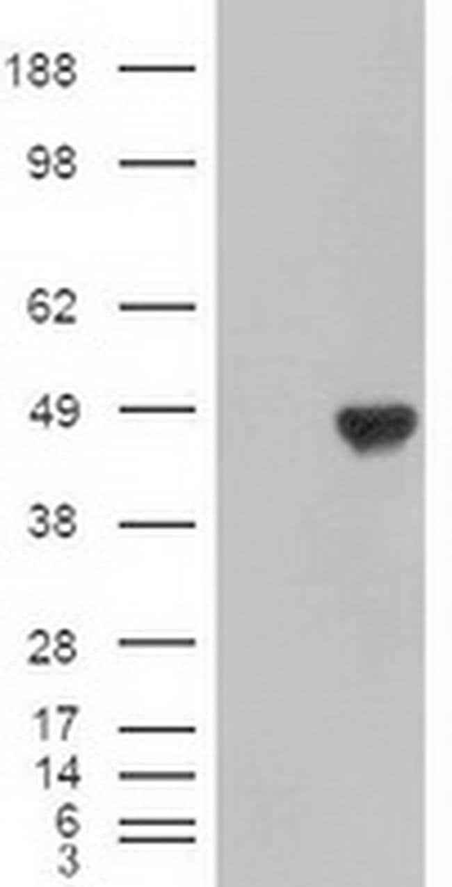 Carboxypeptidase A1 Mouse anti-Human, Clone: OTI4F1, Invitrogen 100 µL;
