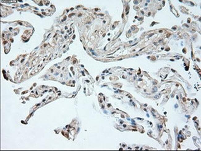 Neurogenin 1 Mouse anti-Human, Clone: OTI9A8, Invitrogen 100 µL; Unconjugated