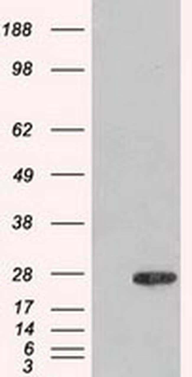 Adenylate Kinase 1 Mouse anti-Human, Non-human primate, Clone: OTI8A1,