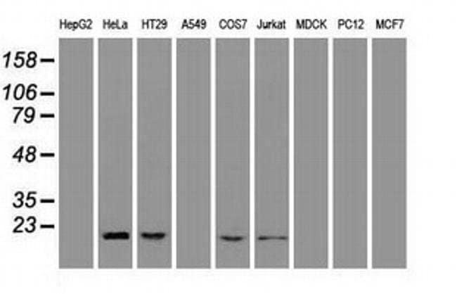 Adenylate Kinase 1 Mouse anti-Human, Non-human primate, Clone: OTI4A1,