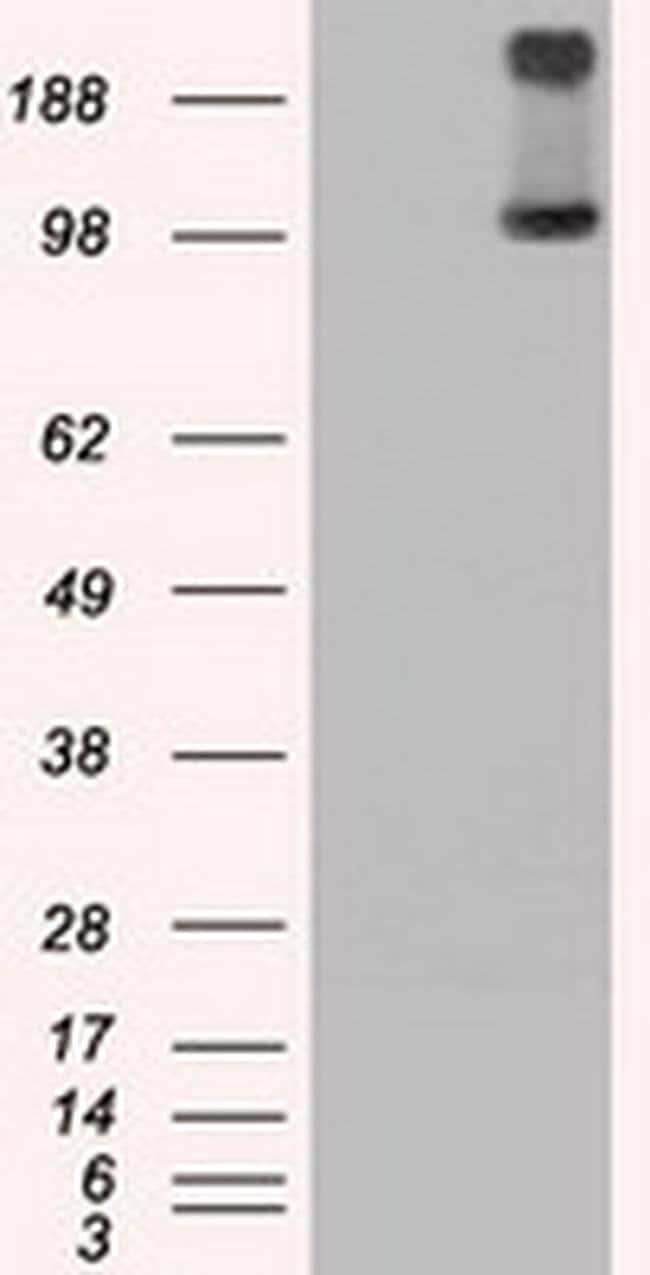 TRPM4 Mouse anti-Human, Clone: OTI14C3, Invitrogen 100 µL; Unconjugated