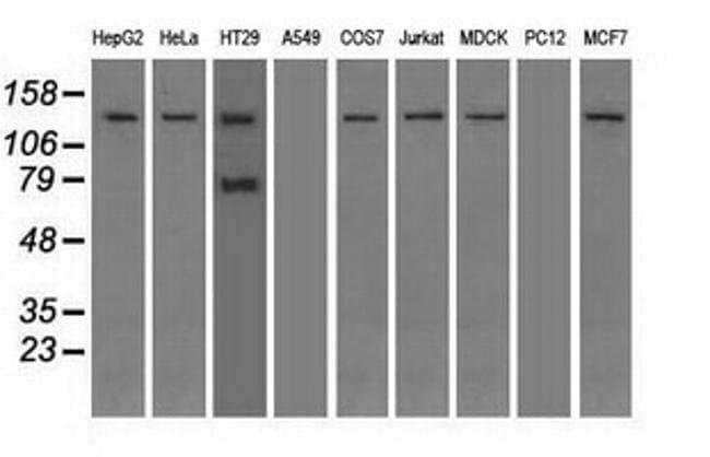 TRPM4 Mouse anti-Canine, Human, Non-human primate, Clone: OTI10H5, Invitrogen