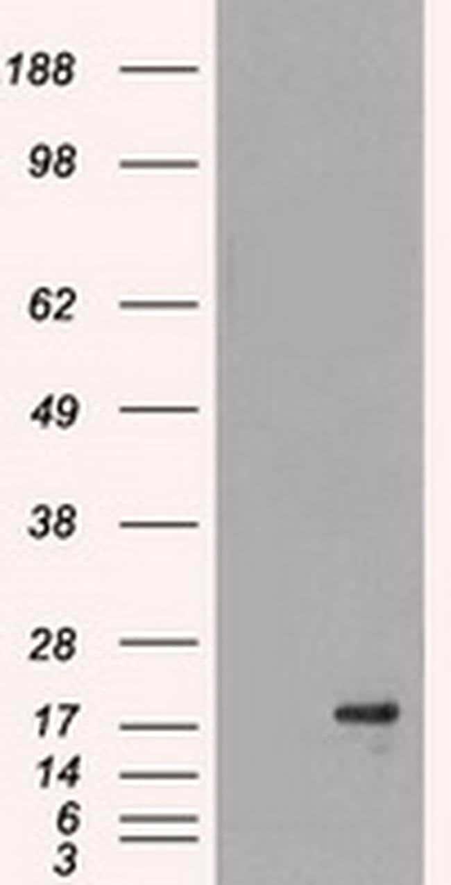 DHFR Mouse anti-Human, Clone: OTI3A11, Invitrogen 100 µL; Unconjugated
