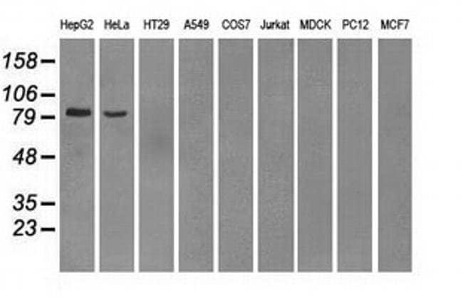 PDE10A Mouse anti-Human, Clone: OTI1B2, Invitrogen 100 µL; Unconjugated