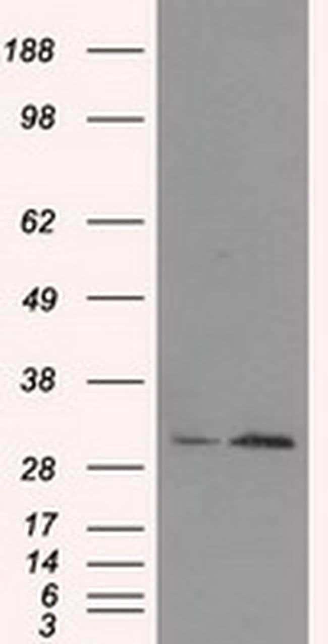 TIPRL Mouse anti-Human, Clone: OTI3D11, Invitrogen 100 µL; Unconjugated