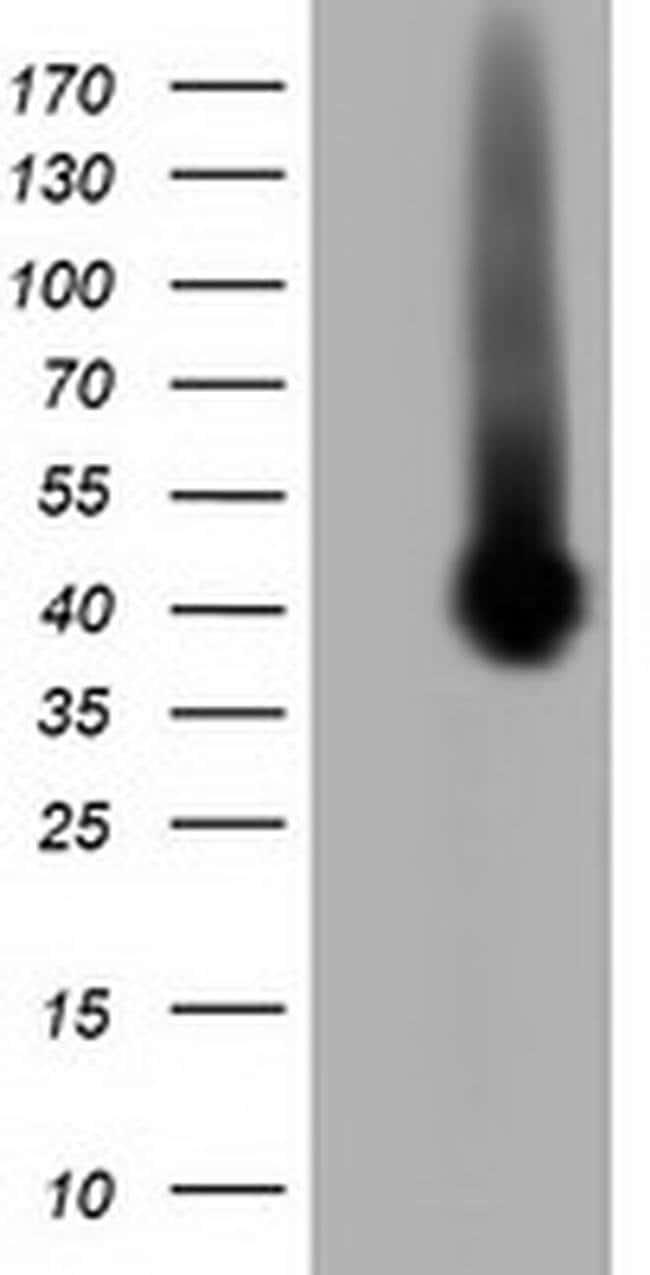 Pleckstrin Mouse anti-Human, Clone: OTI4G6, Invitrogen 100 µL; Unconjugated