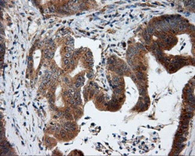 KIAA1609 Mouse anti-Human, Clone: OTI3C4, Invitrogen 100 µL; Unconjugated
