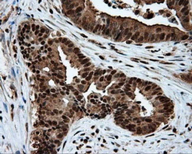 ATP Citrate Lyase Mouse anti-Human, Clone: OTI3G8, Invitrogen 100 µL;