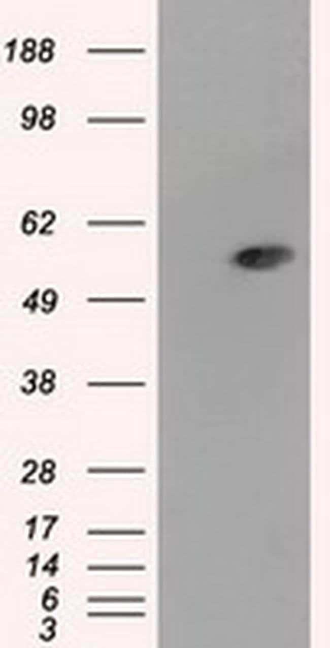 ALDH3A1 Mouse anti-Human, Clone: OTI1B6, Invitrogen 100 µL; Unconjugated