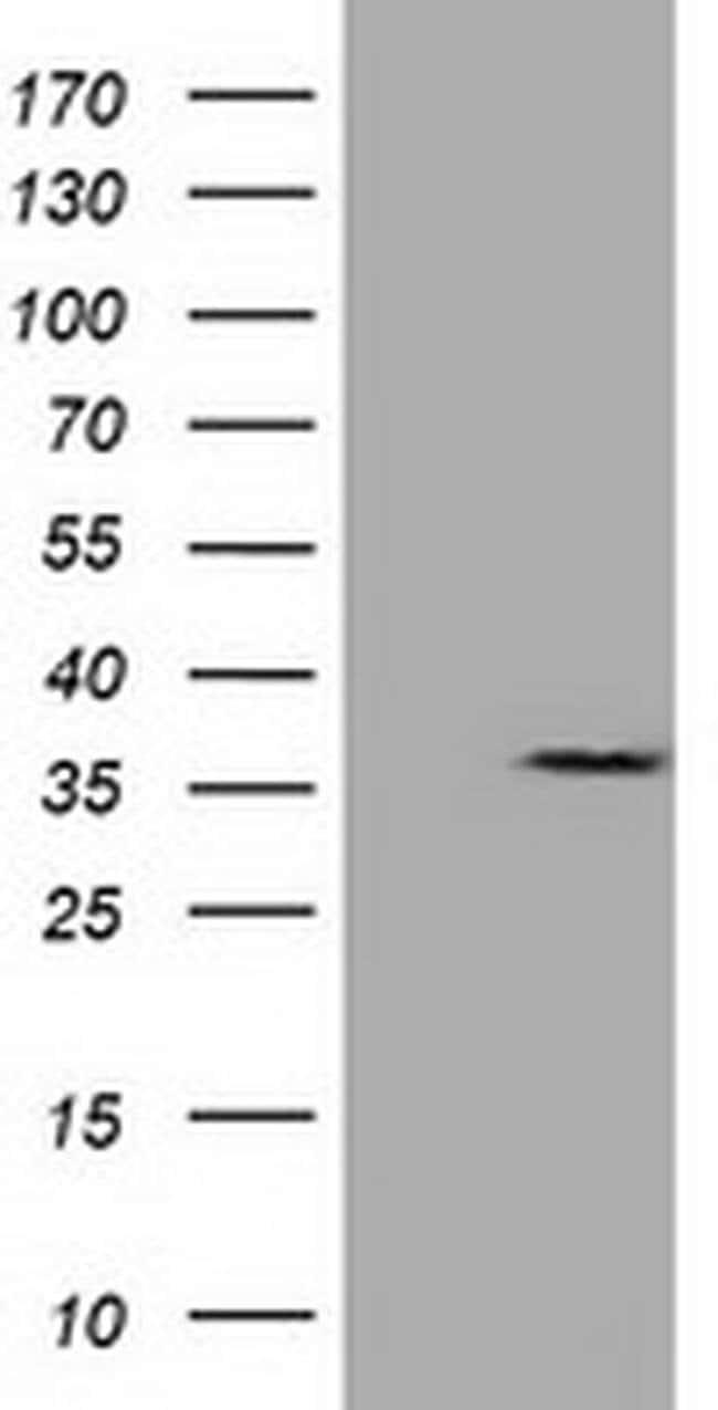 CAPZA1 Mouse anti-Canine, Cynomolgus Monkey, Human, Rat, Clone: OTI7C8,