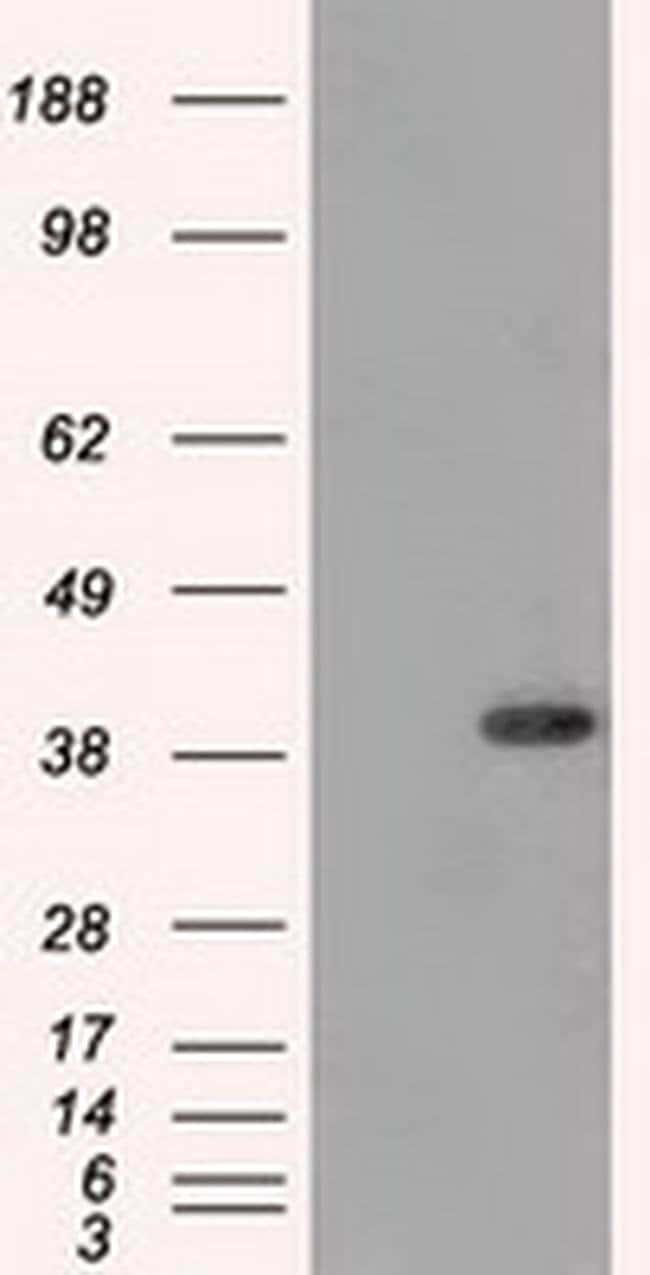 DNTTIP1 Mouse anti-Human, Clone: OTI1F4, Invitrogen 100 µL; Unconjugated