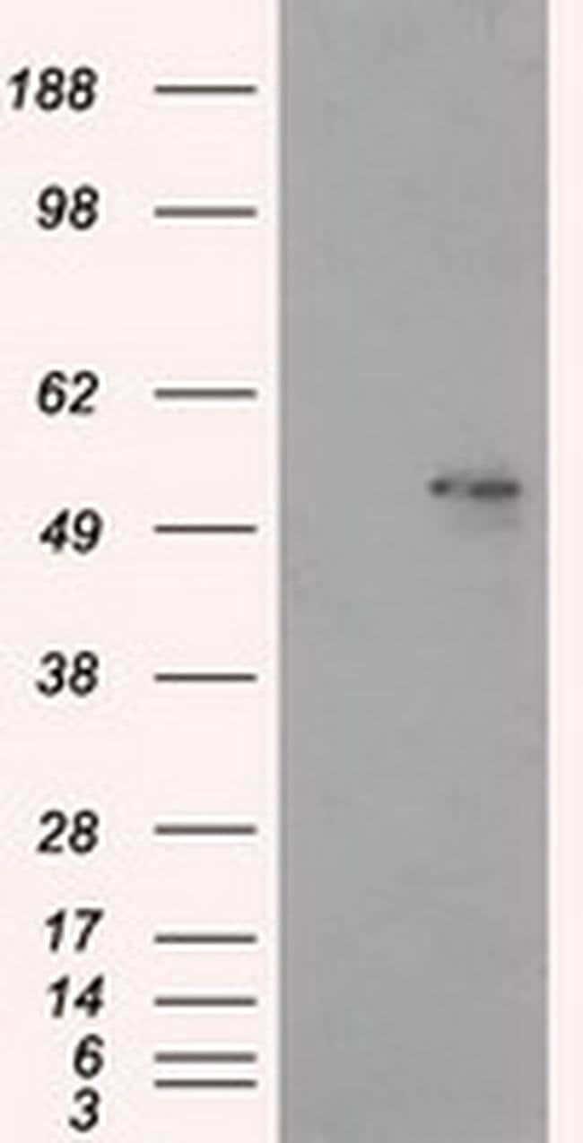 ALDH3A1 Mouse anti-Human, Clone: OTI1C6, Invitrogen 100 µL; Unconjugated