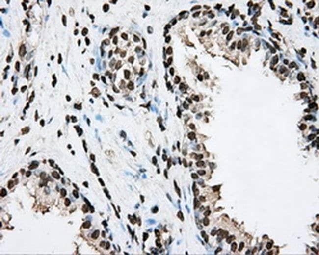 BMAL1 Mouse anti-Human, Clone: OTI1C11, Invitrogen 100 µL; Unconjugated
