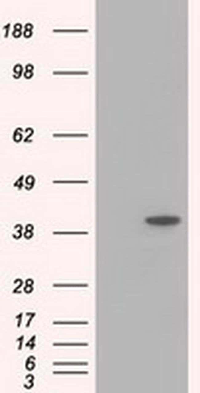 ACAT2 Mouse anti-Canine, Human, Non-human primate, Rat, Clone: OTI1B7,