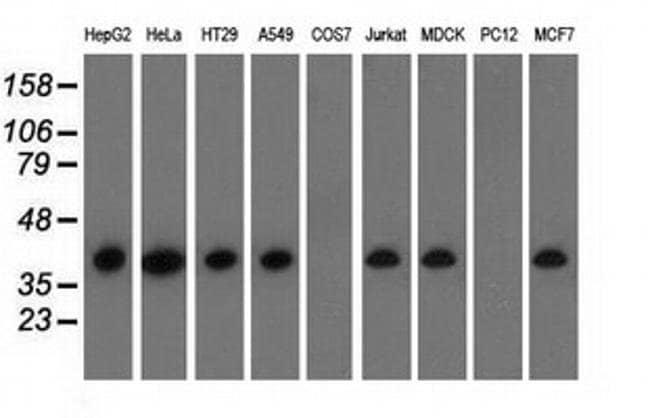 HIBCH Mouse anti-Canine, Human, Clone: OTI3H5, Invitrogen 100 µL;