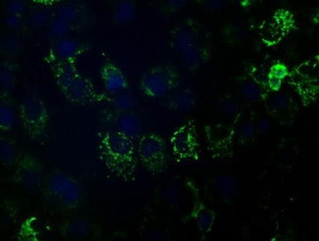 HIBCH Mouse anti-Canine, Human, Rat, Clone: OTI1C7, Invitrogen 100 µL;