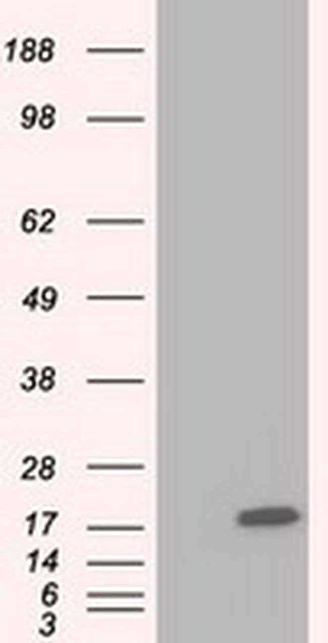 TTC32 Mouse anti-Human, Clone: OTI5C12, Invitrogen 100 µL; Unconjugated