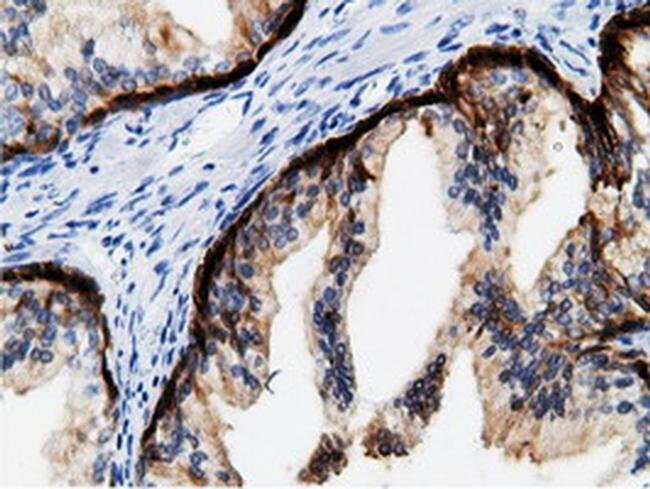 CRYM Mouse anti-Human, Rat, Clone: OTI1G7, Invitrogen 100 µL; Unconjugated