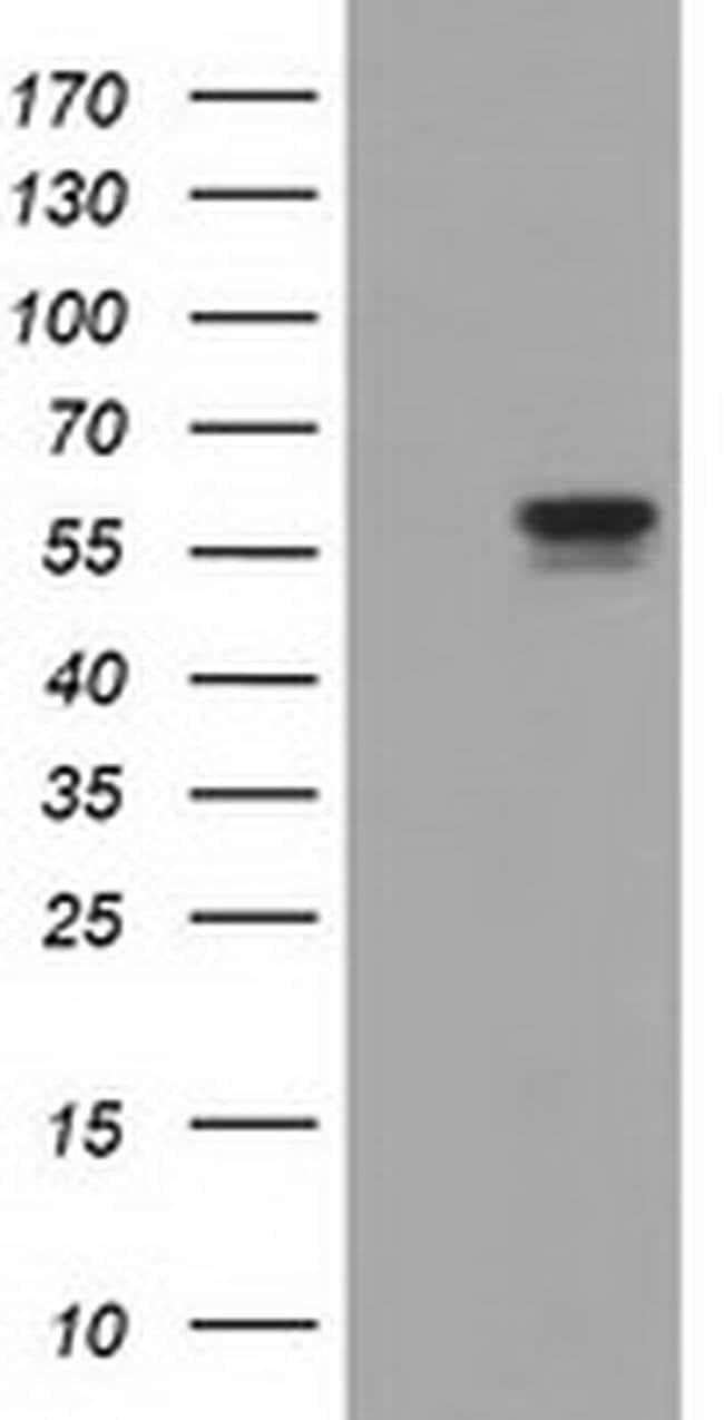 DYNC1LI1 Mouse anti-Human, Clone: OTI1D1, Invitrogen 100 µL; Unconjugated