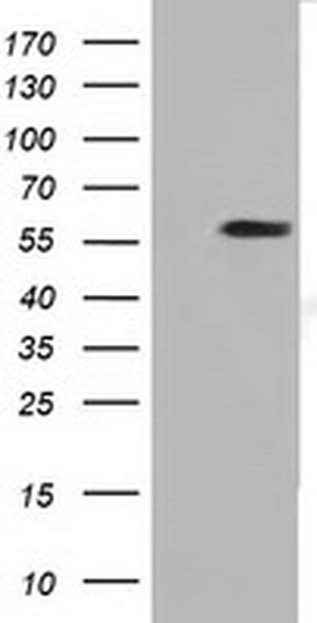 DYNC1LI1 Mouse anti-Human, Clone: OTI2E8, Invitrogen 100 µL; Unconjugated