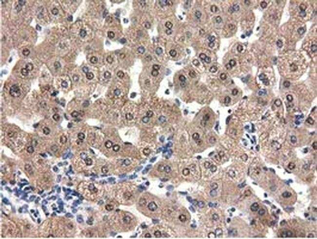 QPRT Mouse anti-Human, Clone: OTI1C10, Invitrogen 100 µL; Unconjugated