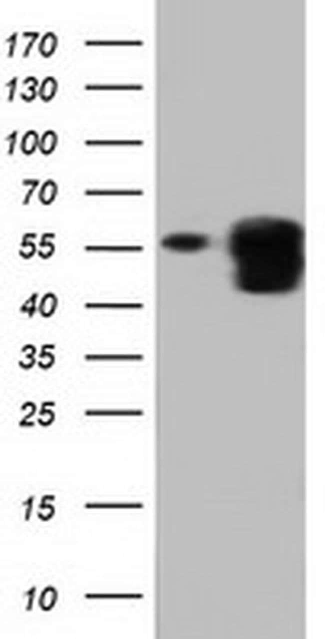 PEPD Mouse anti-Human, Clone: OTI5D5, Invitrogen 100 µL; Unconjugated