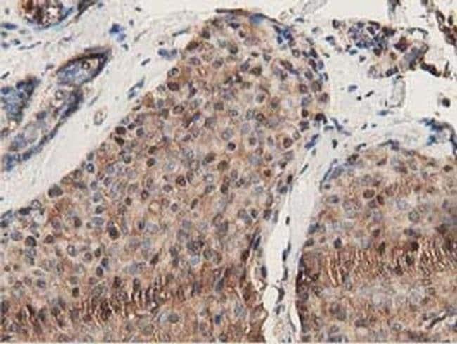 GSTT2 Mouse anti-Human, Clone: OTI2E3, Invitrogen 100 µL; Unconjugated