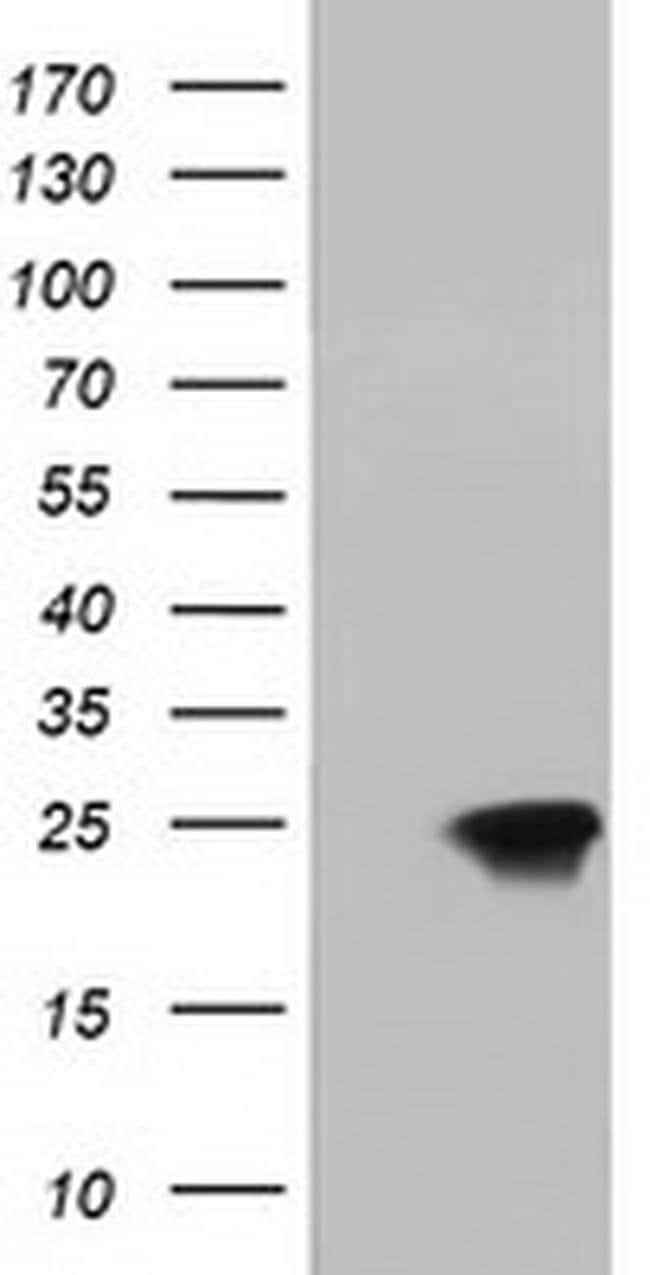 DUSP27 Mouse anti-Human, Clone: OTI1F3, Invitrogen 100 µL; Unconjugated