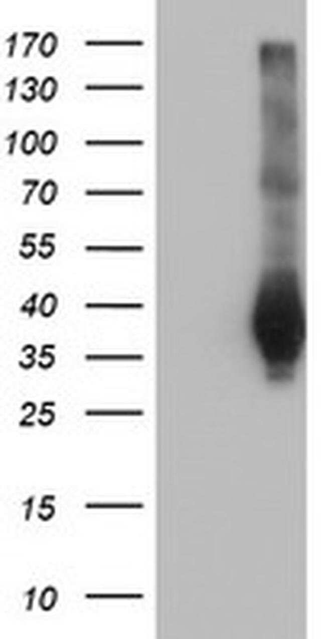 FAM84B Mouse anti-Human, Clone: OTI1D12, Invitrogen 100 µL; Unconjugated