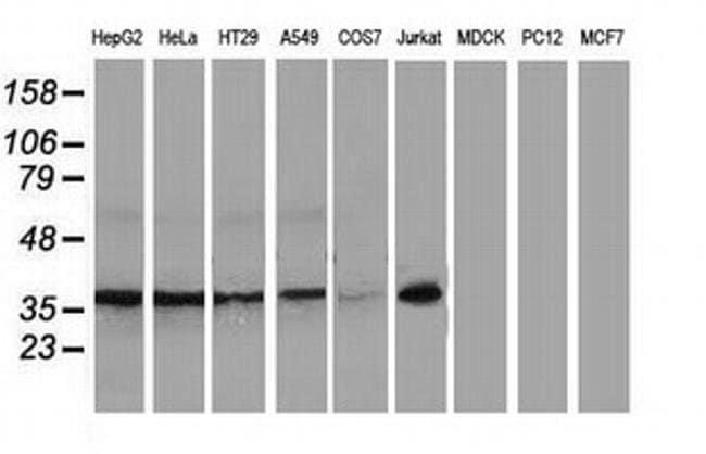 XLF Mouse anti-Human, Non-human primate, Clone: OTI3D6, Invitrogen 100