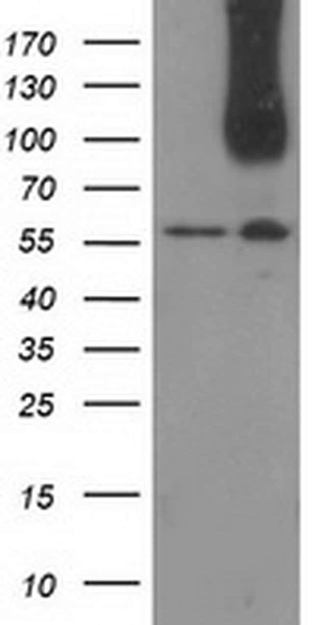 CDCP1 Mouse anti-Human, Clone: OTI2B8, Invitrogen 100 µL; Unconjugated