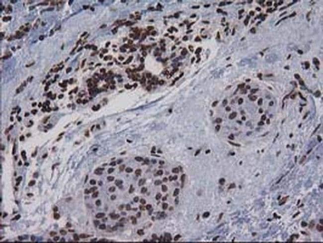 CTDSP1 Mouse anti-Human, Clone: OTI1B6, Invitrogen 100 µL; Unconjugated