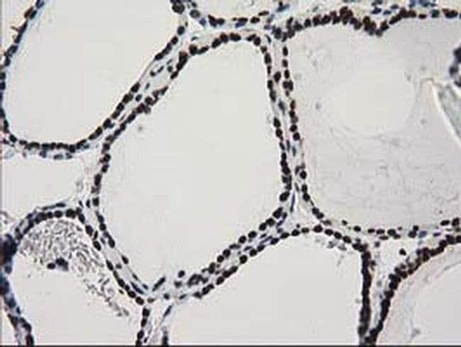 CTDSP1 Mouse anti-Human, Clone: OTI1G1, Invitrogen 100 µL; Unconjugated