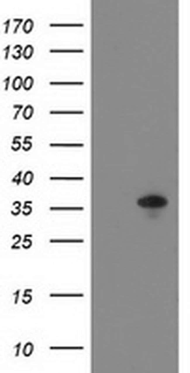 ACY3 Mouse anti-Human, Clone: OTI2G4, Invitrogen 100 µL; Unconjugated