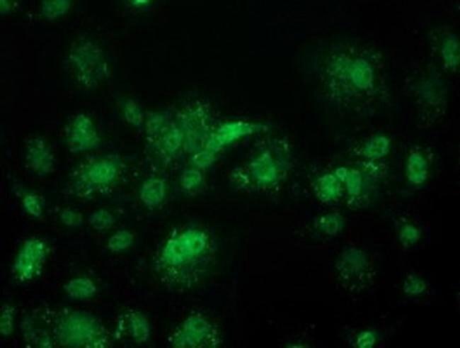 ACY3 Mouse anti-Human, Non-human primate, Clone: OTI2D5, Invitrogen 100