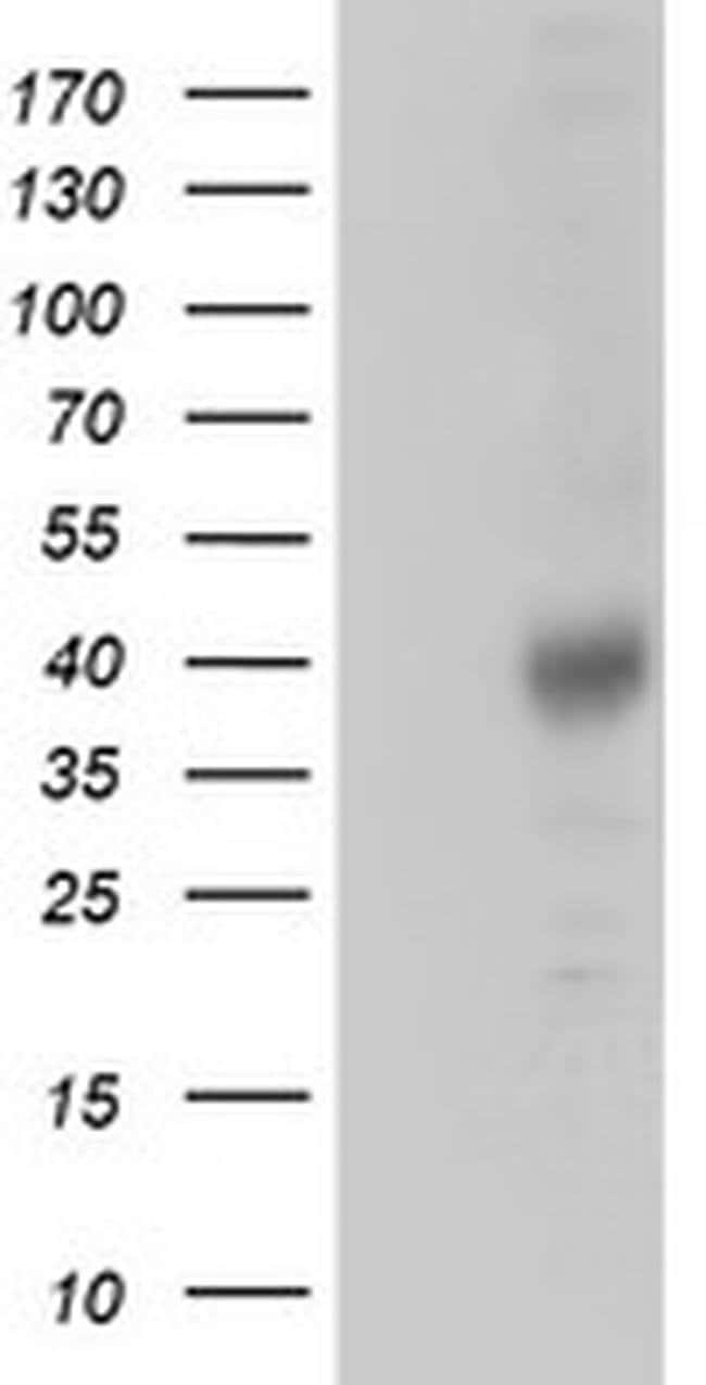 ZFP36 Mouse anti-Human, Clone: OTI1A2, Invitrogen 100 µL; Unconjugated