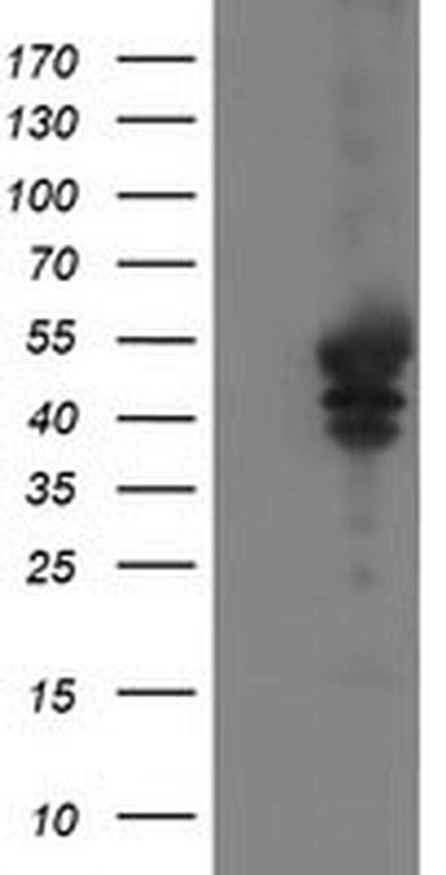VASP Mouse anti-Canine, Human, Clone: OTI1F3, Invitrogen 100 µL; Unconjugated